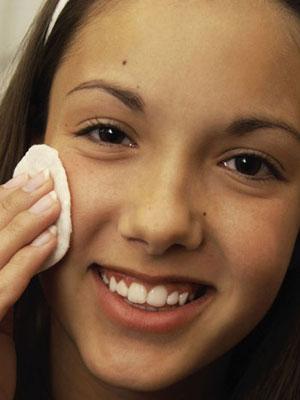 Remedios caseros para tratar el acné