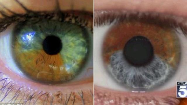 Como convertir ojos marrones en azules con tecnología laser